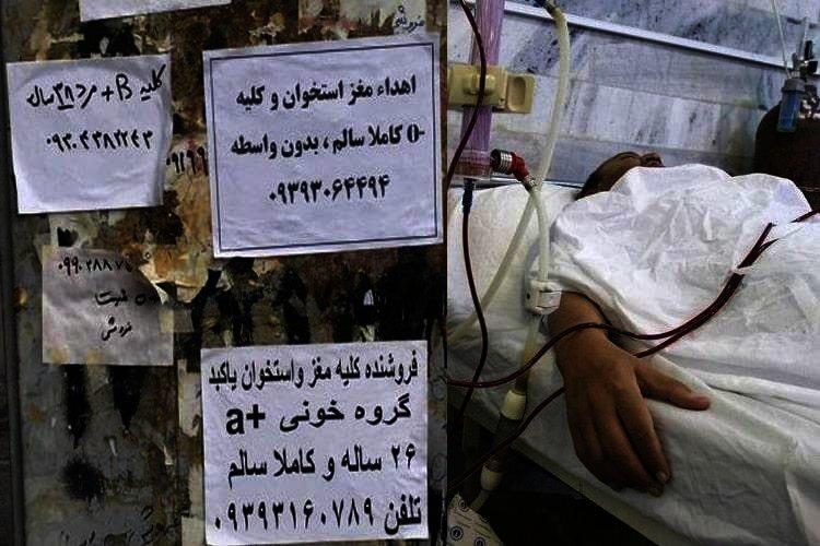 organ trade in Iran